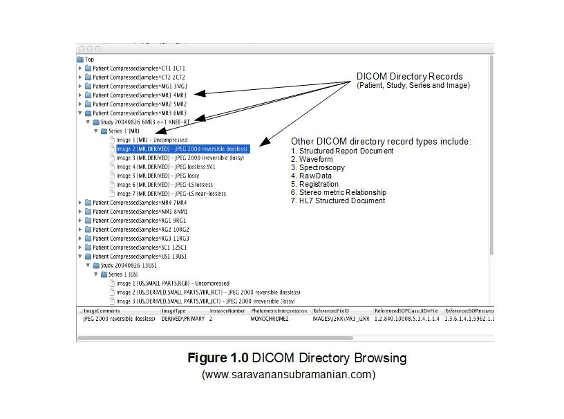 DICOM Basics using Java - Understanding DICOM Directory